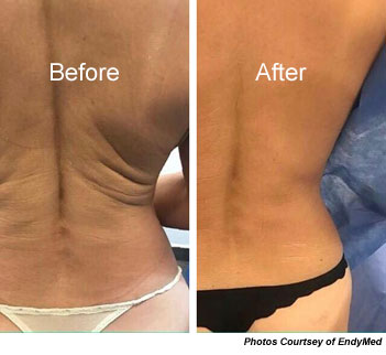 Nu-BodyContour Treatment Before and After