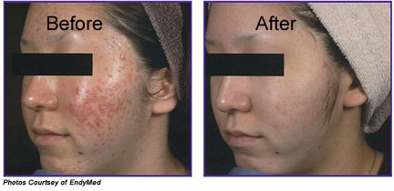 Nu-Erase Treatment Before and After