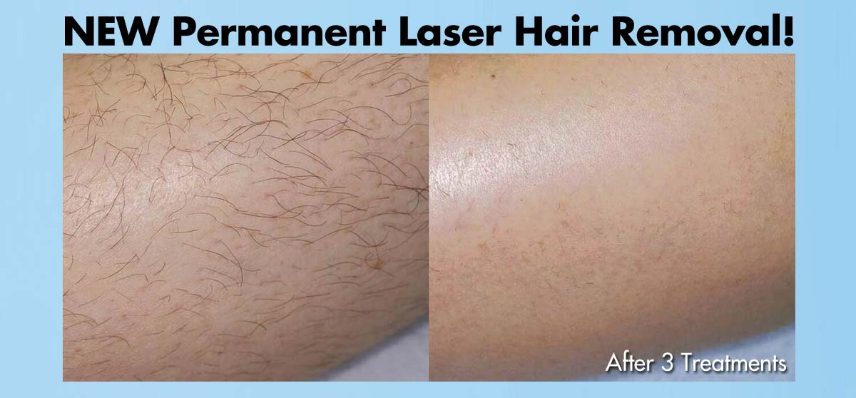 Permanent Hair Removal!