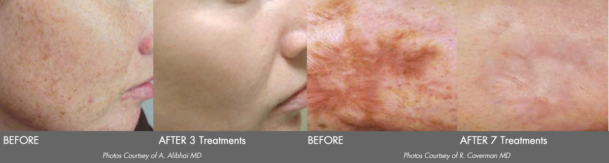 Icon Scar Removal Before and After