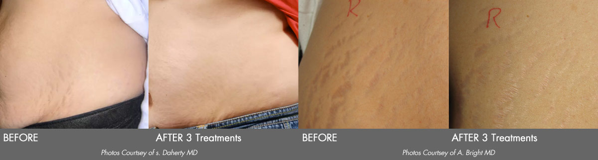 Icon Stretch Mark Removal