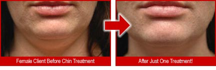 Female before and after just one treatment on chin.