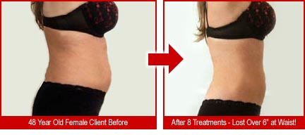 "48 year old female lost over 6"" at waist in just 8 treatments"