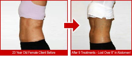 "23 year old female client lost over 8"" in abdomen with 9 treatments"